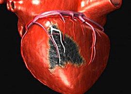 Русский феномен: пациенты не боятся инфаркта