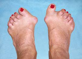 симптомы ревматоидного артрита, больных ревматоидным артритом, причина ревматоидного артирта, диагностирован ревматоидный артрит, ревматических заболеваниях, иммунная система человека, ювенильным ревматоидным артритом