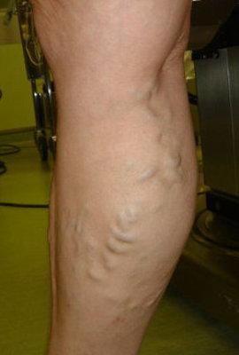 заболеть варикозом вен на ногах, склонности к варикозу вен, развивается варикозная болезнь, застой в венах ног, лечении варикоза вен на ногах, лечить вены на ногах, проявления варикоза вен на ногах