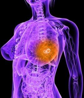 маммолог, врач маммолог онколог маммолог, прием маммолога, консультация маммолога, хороший маммолог, маммолог центр