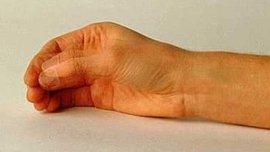 болезнь паркинсона, болезнь паркинсона симптомы, болезнь паркинсона лечение, болехнь паркинсона симптомы и лечение