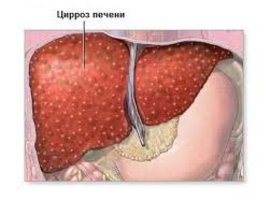 гепатит С, СПИД, смертность, печень, заболевания печени