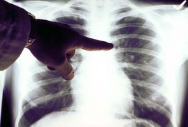 стресс, рак груди, грудь, маммология, онкология, онкология, лечение онкологии, нии онкологии, рак, лечение, рак груди, онкологические заболевания, рак желудка