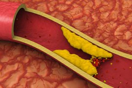 Когда зашкаливает холестерин Видео